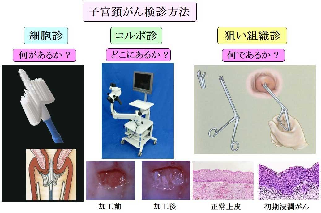 検診 子宮 癌